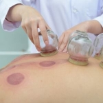 What Do Medical Studies Say About Cupping Therapy?