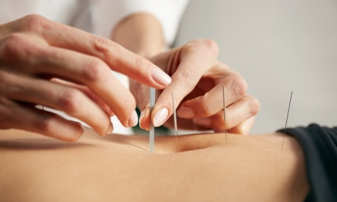 Acupuncture Treatment Brisbane